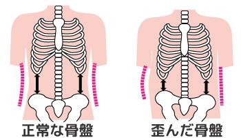骨盤のゆがみとくびれの関係