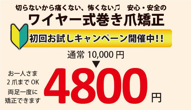 巻き爪矯正初回4800円