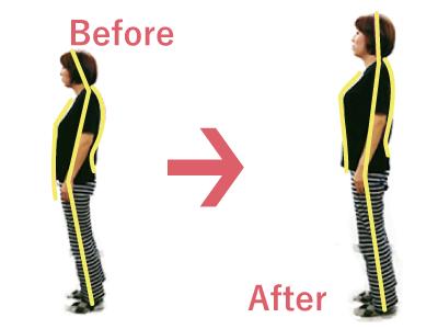 姿勢矯正 整体 で 肩こり 腰痛 改善