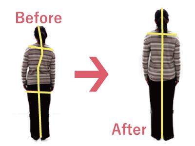 体幹矯正で 体の歪み 腰痛 改善