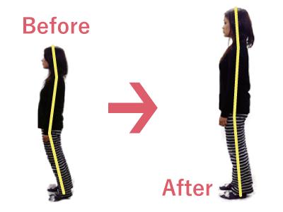 姿勢矯正 整体 でスタイル改善 ダイエット にも